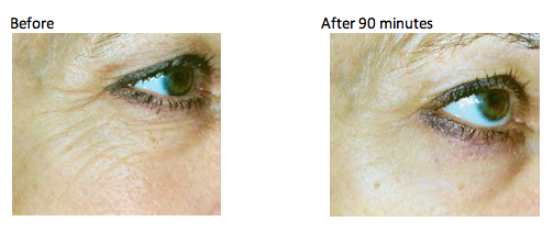 Murad Rapid Collagen Infusion Before & After // Belle Belle Beauty