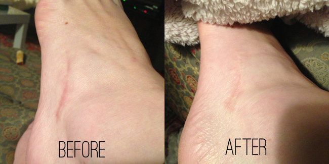 Kate Somerville D-Scar Before and After // Belle Belle Beauty